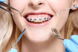 We love Smiles Orthodontist Zurich